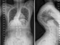 Кифосколиоз: симптомы и лечение
