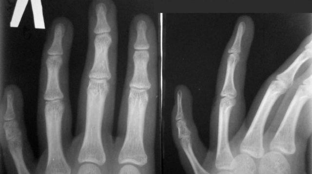 Рентгеновский снимок здоровой и деформированной кистей