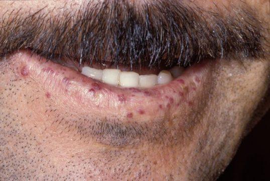 Телеангиэктазии на губах при наследственной форме болезни Рандю — Ослера.