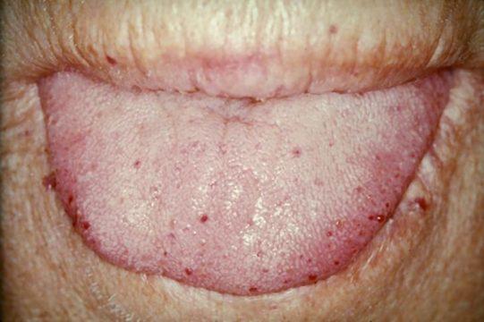 Телеангиэктазии на губах при начальной стадии синдрома Ослера
