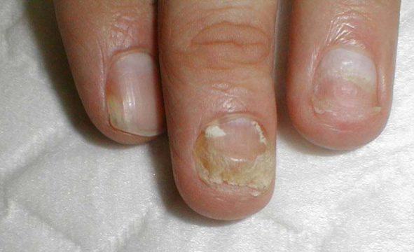 Грибок между пальцев на ногах кремы