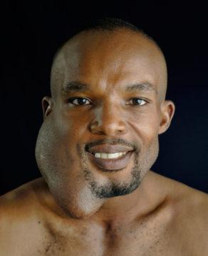 Мужчина с амелобластомой