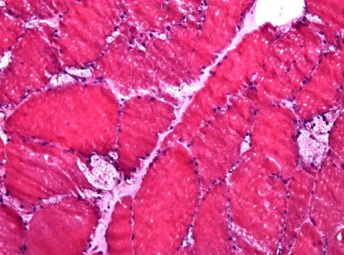 Биопсия мышечной ткани: на замороженном микропрепарате видны крупные вакуоли, характерные для болезни Помпе