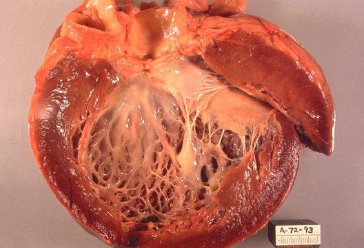 Сердце человека с кардиомиопатией