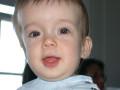 Ребенок с краниосиностозом