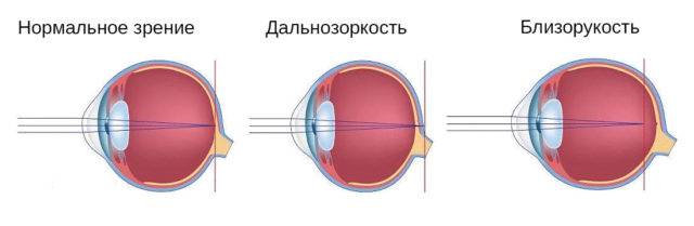 Форма глаза при нормальном зрении, дальнозоркости и близорукости