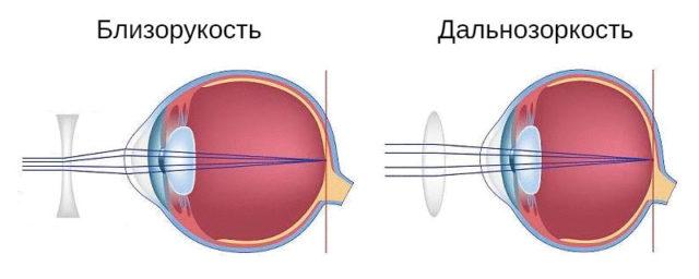 Коррекция зрения при помощи линз