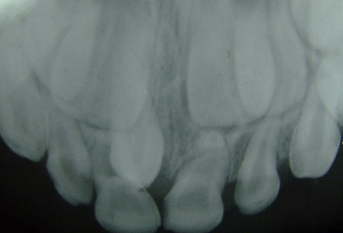 Полиодонтия у человека - рентгеновский снимок зубов