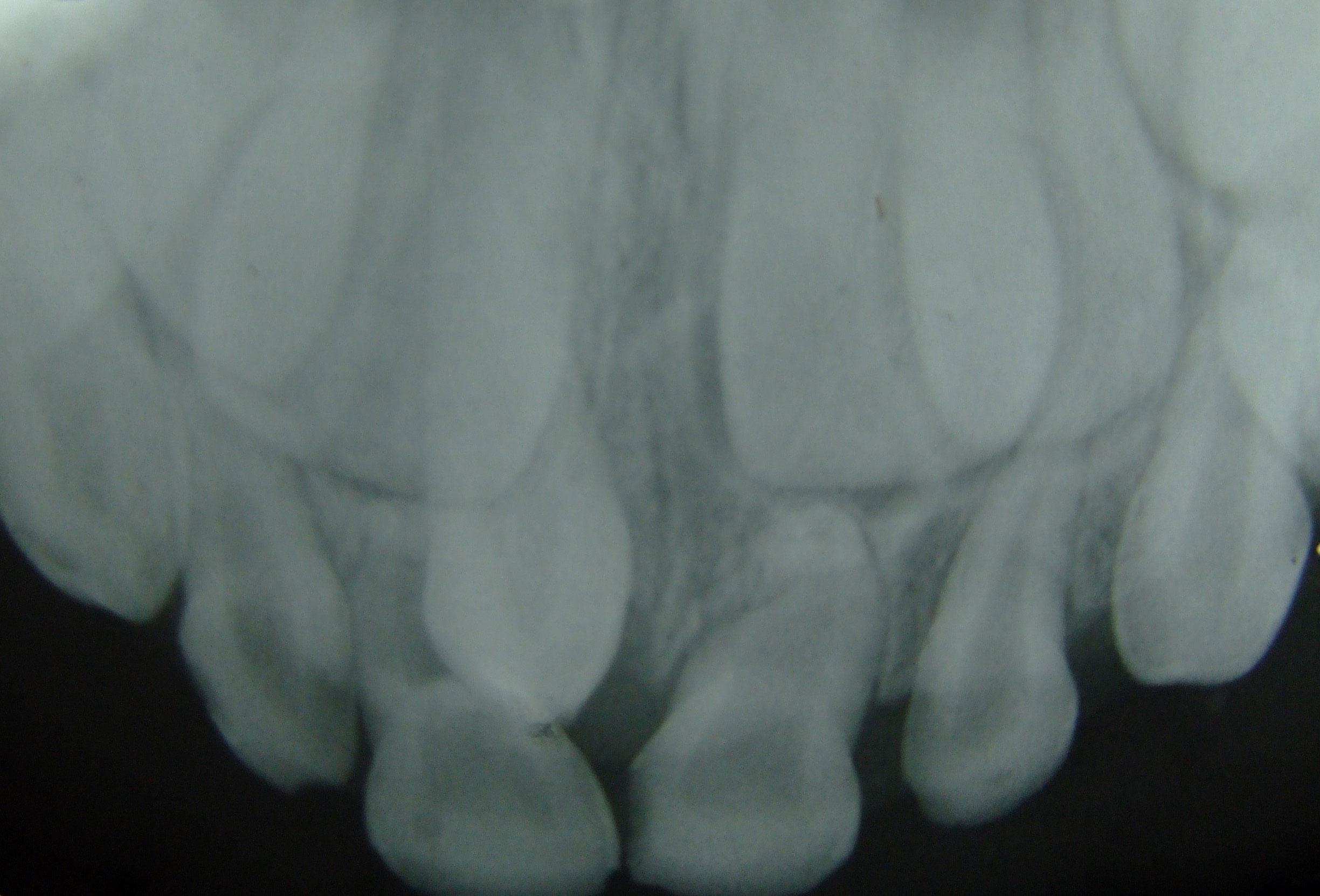 Как растут коренные зубы у детей схема