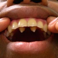 Полиодонтия передних зубов (клыки)