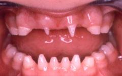 Полиодонтия у детей