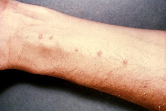 Признаки заражения шистосомозом