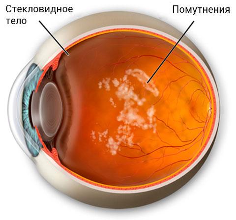 Деструкция стекловидного тела: помутнения в глазу
