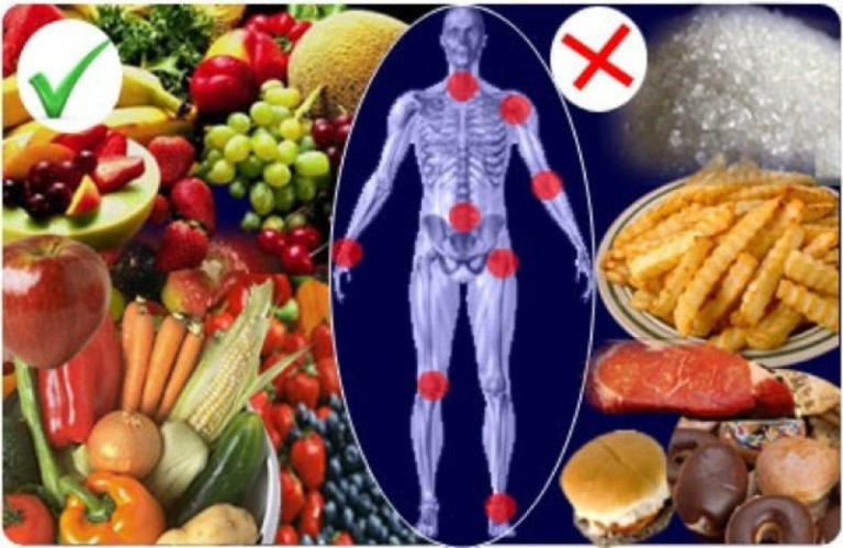Питание при артрозе коленного сустава - здорова