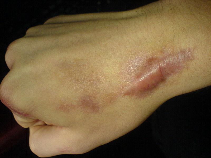 Келоид: симптомы и лечение