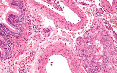 Лимфангиолейомиоматоз: симптомы и лечение