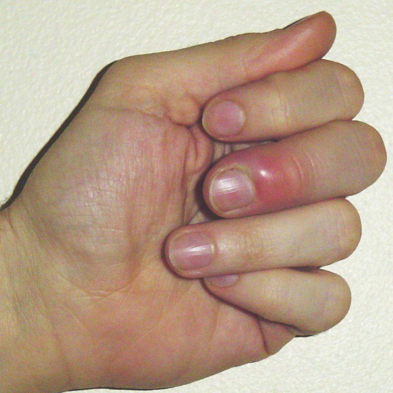 Паронихия (околоногтевой панариций) : симптомы и лечение