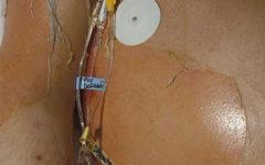 Синдром Лайелла (токсический эпидермальный некролиз): симптомы и лечение