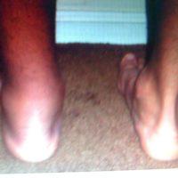 Ахиллобурсит: симптомы и лечение