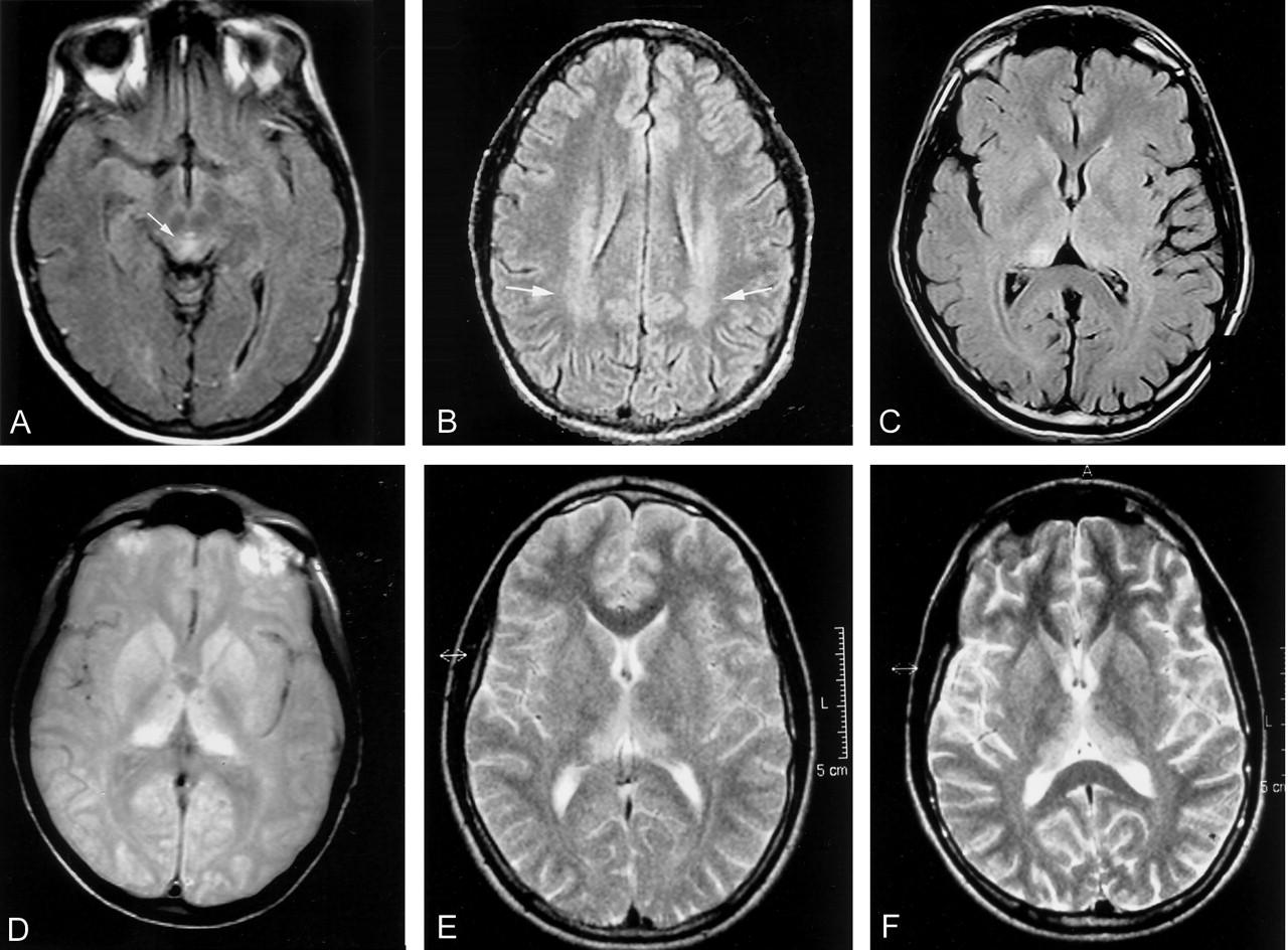 Болезнь Крейтцфельдта-Якоба: этиология, причины и способы заражения