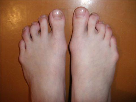 Брахидактилия пальцев ног