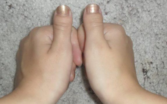 Брахидактилия Д – деформация больших пальцев
