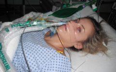 Синдром Гийена — Барре: симптомы и лечение