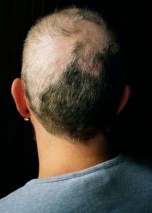 Трихотилломания: симптомы и лечение
