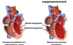 Диаграмма здорового сердца и сердца с дилатационной кардиомиопатией