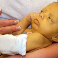 Новорожденный с гемолитической болезнью