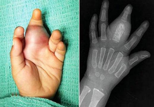 Кисти ребенка при саркоме Юинга 4 стадии