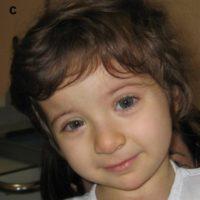 Ребенок с синдромом Рубинштейна-Тейби