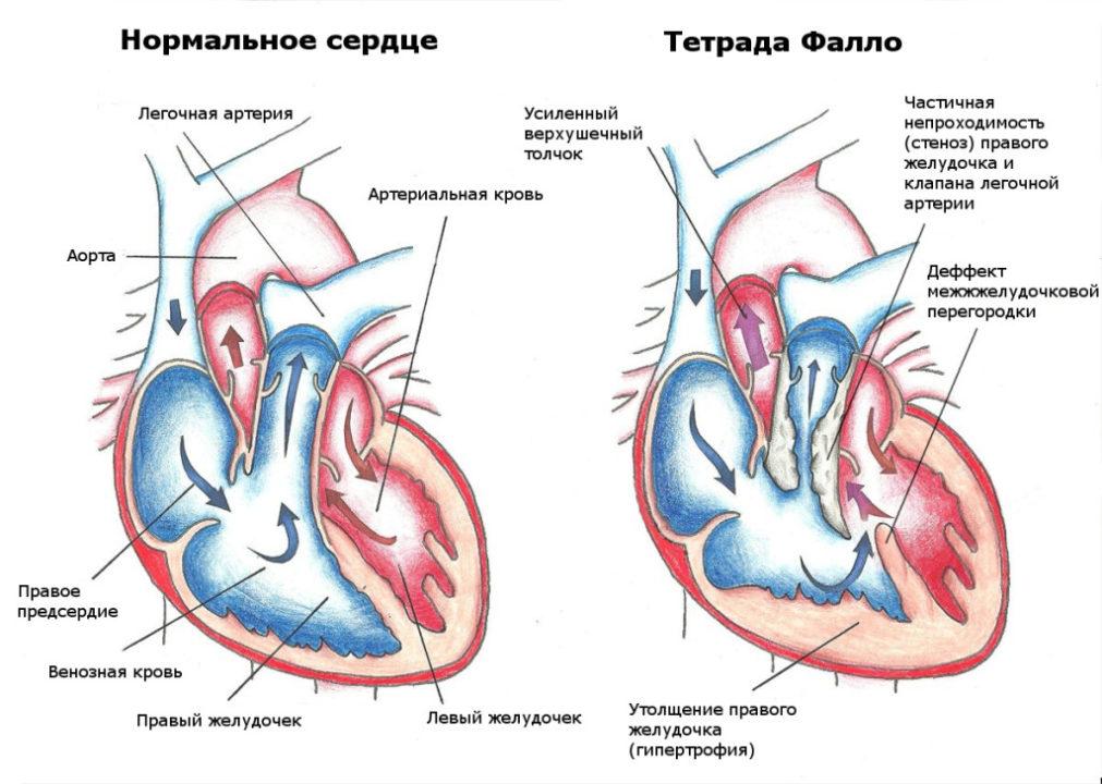 Диаграмма здорового сердца и сердца с тетрадой Фалло