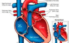 Диаграмма сердца человека с коарктацией аорты