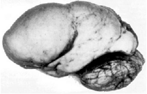 Лиссэнцефалия: поверхность мозга