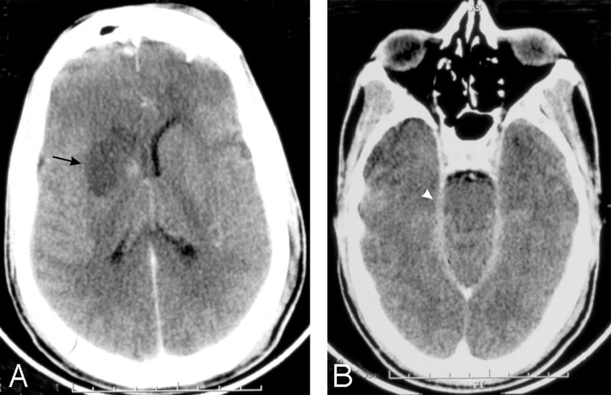 Менингоэнцефалит: снимог головного мозга