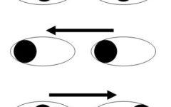 Правая межъядерная офтальмоплегия
