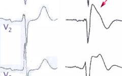 (А) — нормальная ЭКГ в правых грудных отведениях (V1-V3); (В) — изменения при синдроме Бругада