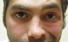 Паралич Белла (неврит лицевого нерва)