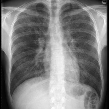 Рентген легких при пневмоцистной пневмонии у ВИЧ-инфицированных.