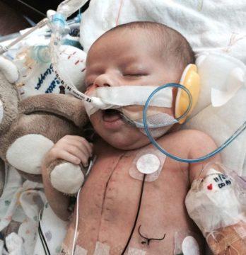 Новорожденный ребенок после 13 часовой операции на сердце