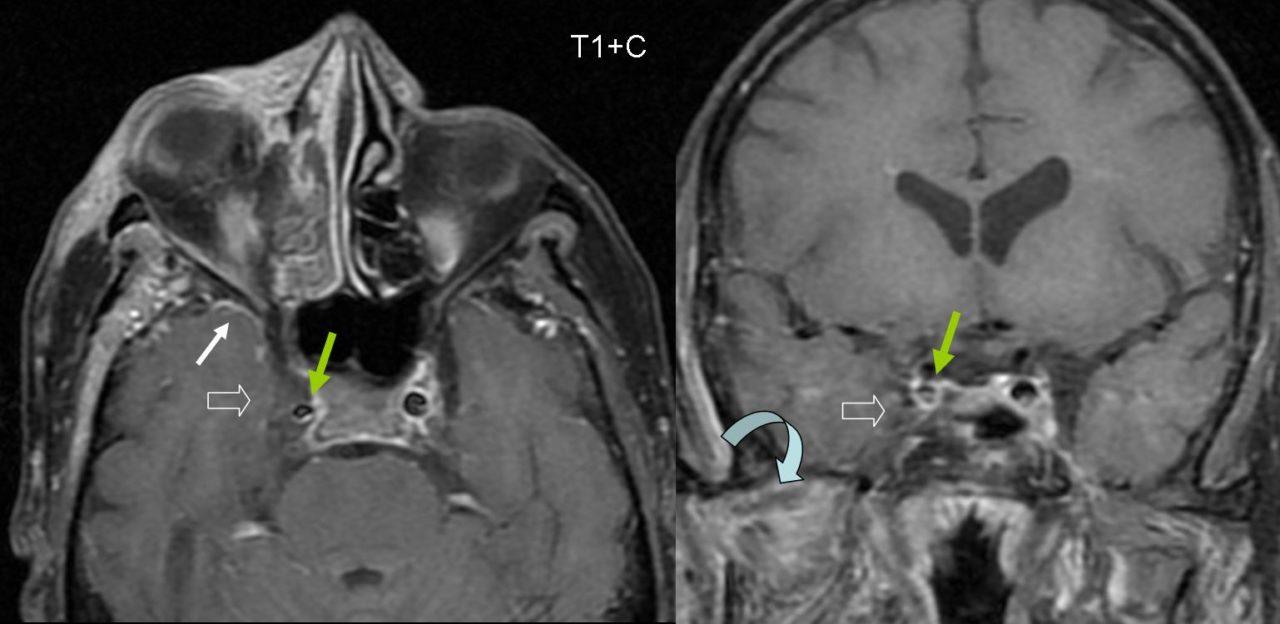 МРТ-снимок при тромбозе кавернозного синуса.