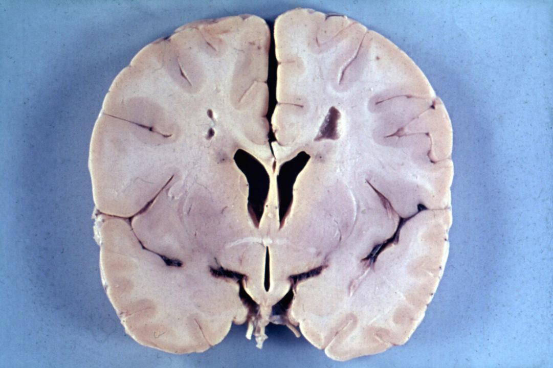 Мозг 4-летнего мальчика с болезнью Александра, наглядно демонстрирующий микроцефалию и перивентрикулярную лейкомаляцию (обратите внимание на фон вокруг желудочков мозга).