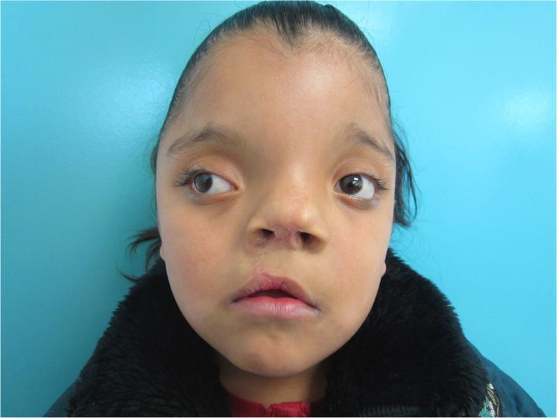 13-летняя девочка, страдающая гипертелоризмом глаз