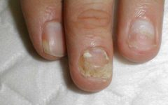 Онихолизис ногтей указательного, среднего и безымянного пальцев
