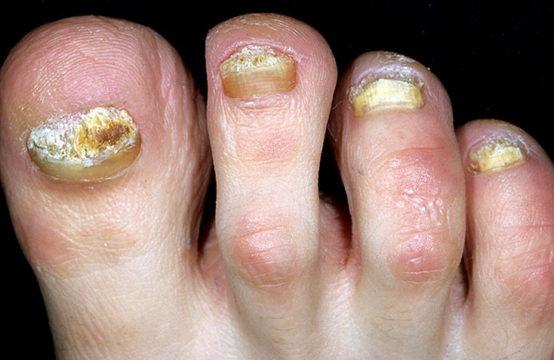 Онихолизис на ногах