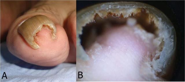 Отслоение ногтя при при онихолизисе