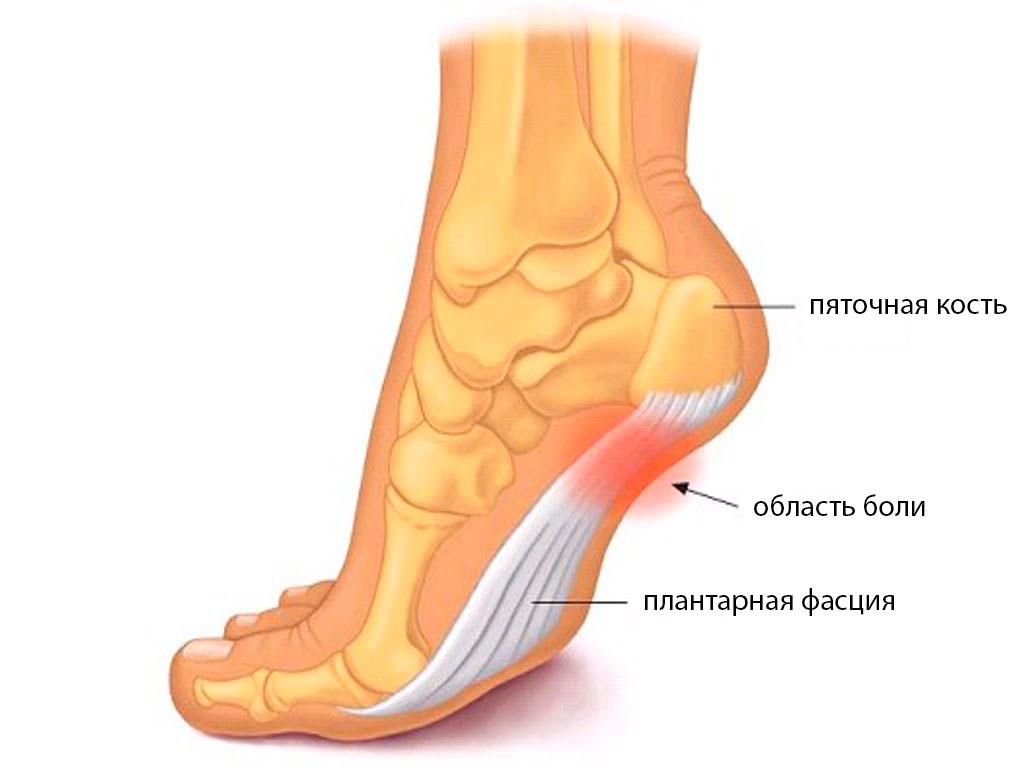 Плантарный фасциит - схема ступни