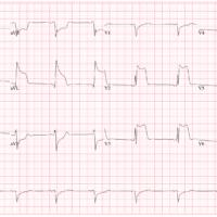 ЭКГ сердца пациента со стенокардией Принцметала.
