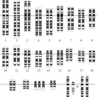 Хромосомы при синдроме Дауна - наиболее распространенном заболевании, вызванным анеуплоидией. Обратите внимание на три копии хромосомы 21 в последней строке.
